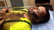 Ukraina: Bułatow wyjechał na leczenie za granicę