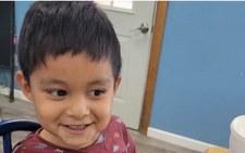USA: 3-latek zmarł u dentysty