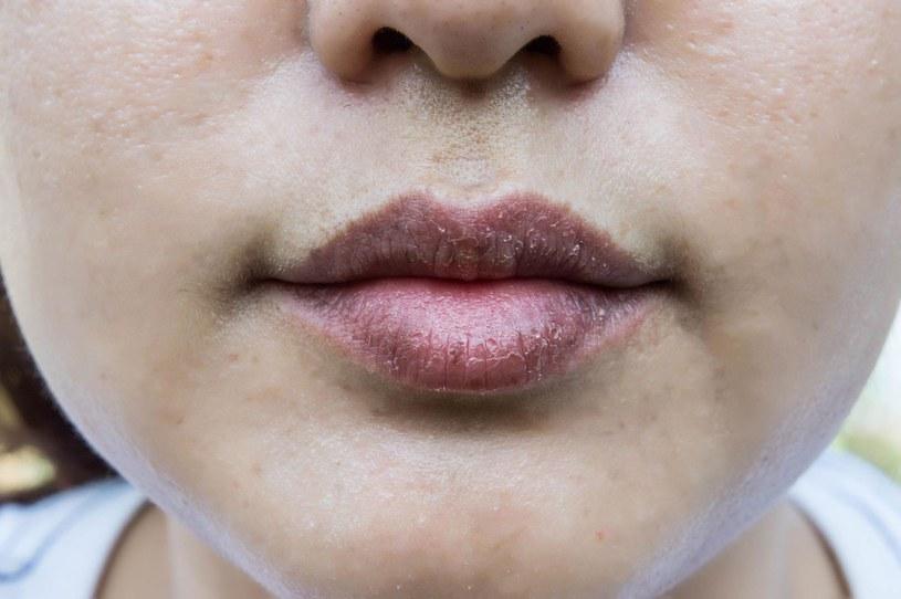 Usta mogę powiedzieć wiele o naszym zdrowiu /123RF/PICSEL