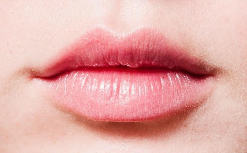 Usta pękają z wielu powodów /123RF/PICSEL