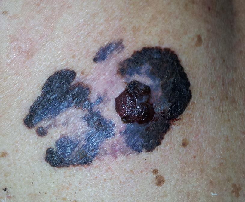 Usunięcie czerniaka miejscowego, kiedy choroba nie jest zaawansowana, pozwala na wyleczenie /123RF/PICSEL