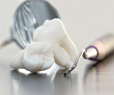 Usuwanie zębów mądrości to największe dentystyczne oszustwo?