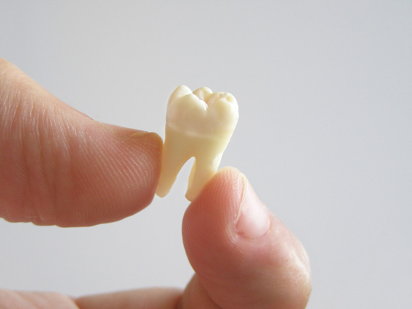 usuwanie zębów /© Photogenica
