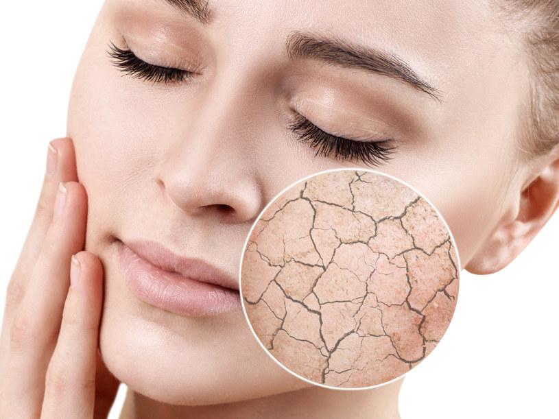 Uszkodzenia i zaburzenia w funkcjonowaniu bariery lipidowej są przyczyną suchości skóry /123RF/PICSEL