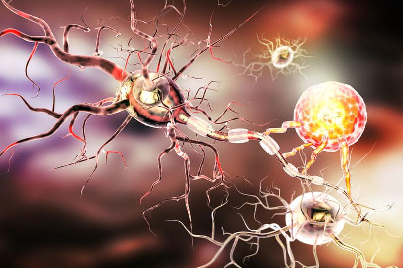 Uszkodzone neurony /©123RF/PICSEL