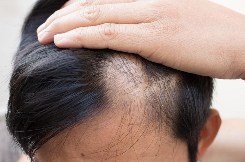 Utrata włosów, w tym w miejscach intymnych, może zwiastować marskość wątroby /123RF/PICSEL