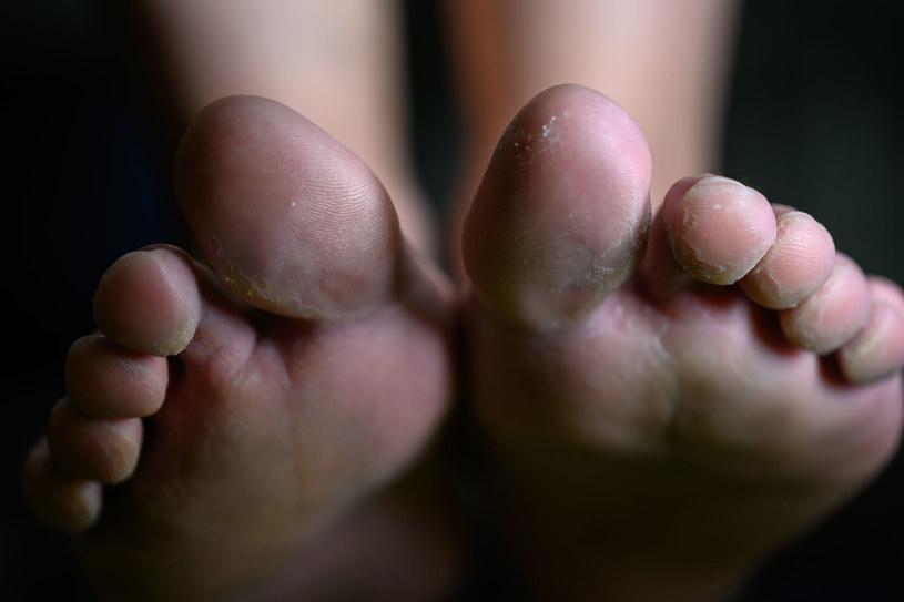 Uważaj, gdzie chodzisz boso. Grzybicą stóp bardzo łatwo się zarazić /123RF/PICSEL