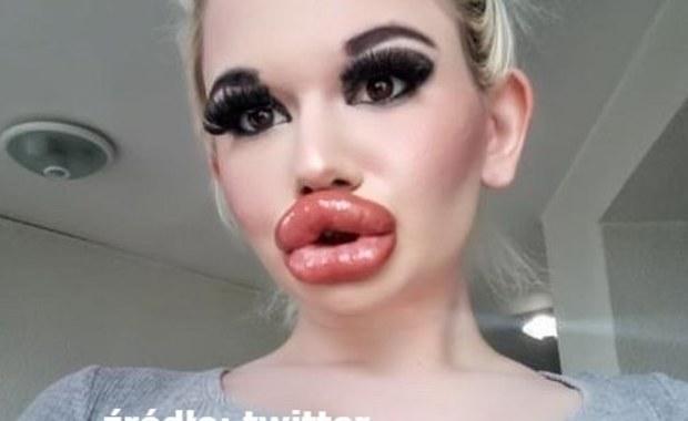 """""""Uważam, że moje usta mogłyby być jeszcze większe"""""""