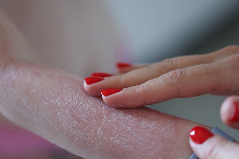 Używanie kremu z filtrem ochronnym to podstawa! /123RF/PICSEL