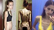 """Vera Schulz """"Shinkory"""" cierpiała na anoreksję, dziś jest trenerką fitness"""