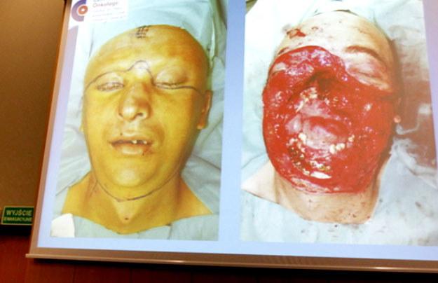 W Centrum Onkologii w Gliwicach przeprowadzono pierwszy w Polsce przeszczep twarzy. /Andrzej Grygiel /PAP