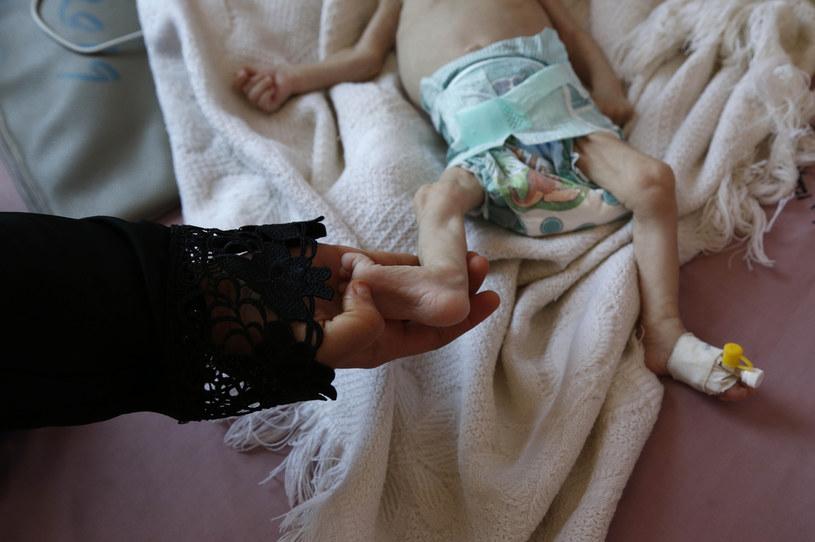 W Jemenie setki tysięcy dzieci zagrożone są śmiercią głodową /Getty Images