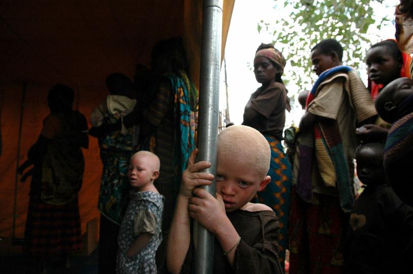 W najtrudniejszej sytuacji są albinosi /Peter Van Agtmael /East News