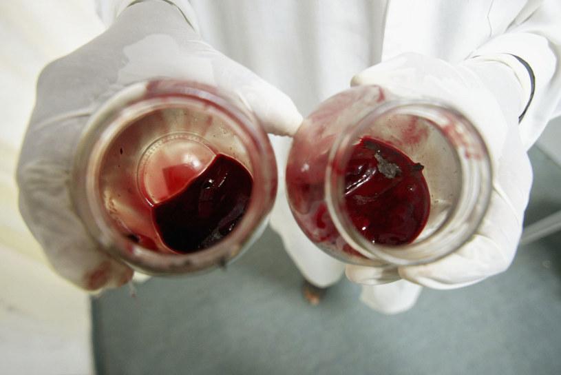 W niektórych kręgach kulturowych upuszczanie krwi, zwłaszcza przy pomocy pijawek,  jest praktykowane po dziś dzień /Getty Images