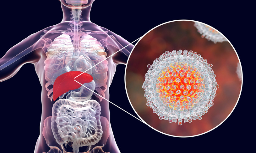 W Polsce liczbę zakażonych wirusem HCV szacuje się na ok. 150 tys.; większość nie zdaje sobie z tego sprawy /123RF/PICSEL