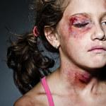W Polsce wciąż istnieje ciche przyzwolenie na bicie dzieci
