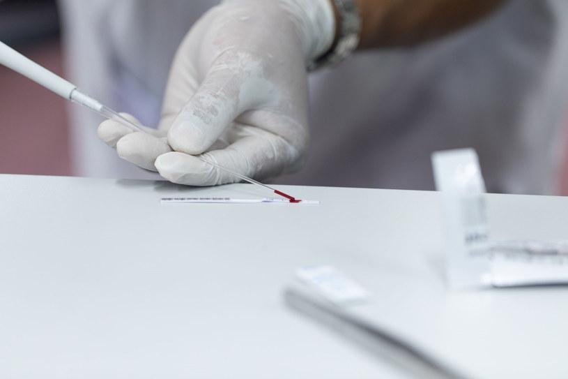 W Polsce zakażenie HCV wykrywa się zazwyczaj przypadkowo /123RF/PICSEL