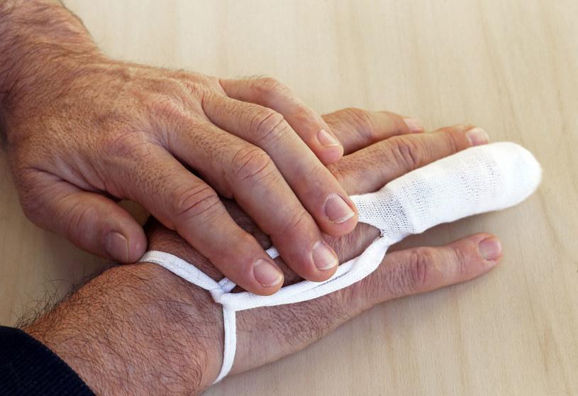 W skrajnych przypadkach odmrożonej kończy może nie udać się uratować i konieczna może okazać się amputacja... /123RF/PICSEL