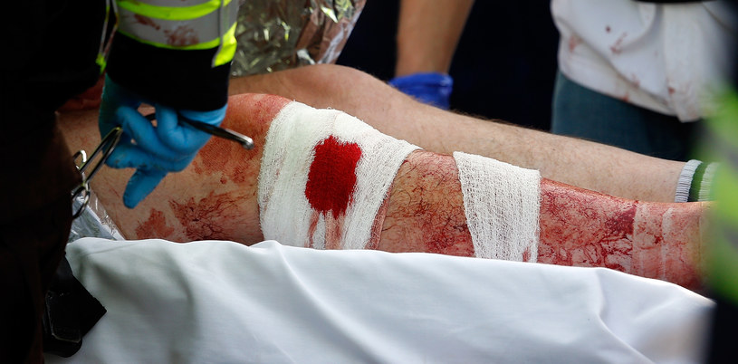 W wybuchach rannych zostało ponad 140 osób /AFP