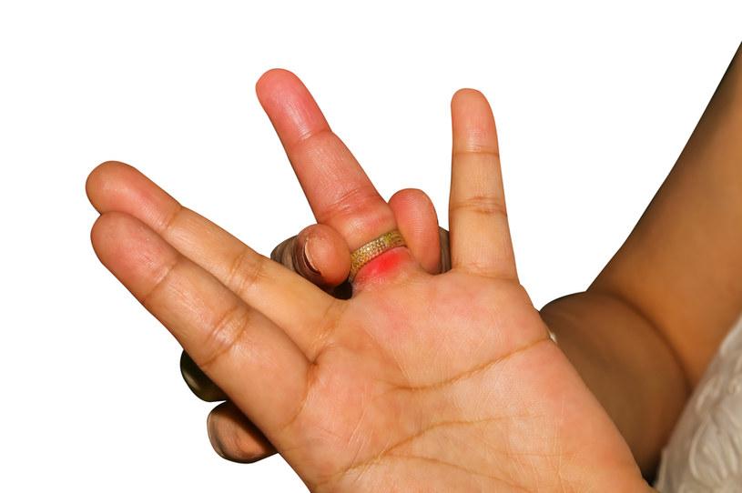 W zdjęciu pierścionka z opuchniętego palca pomoże mydło i folia /123RF/PICSEL