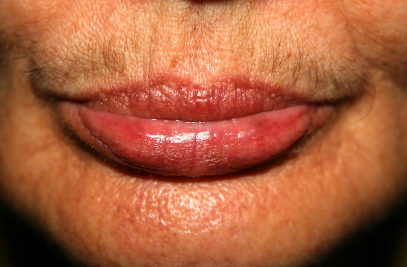 Walczysz z wąsikiem nad górną wargą? Pomogą łagodne kremy i wosk do depilacji /123RF/PICSEL