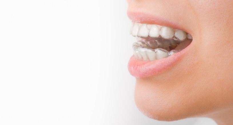 Warto prostować zęby /123RF/PICSEL