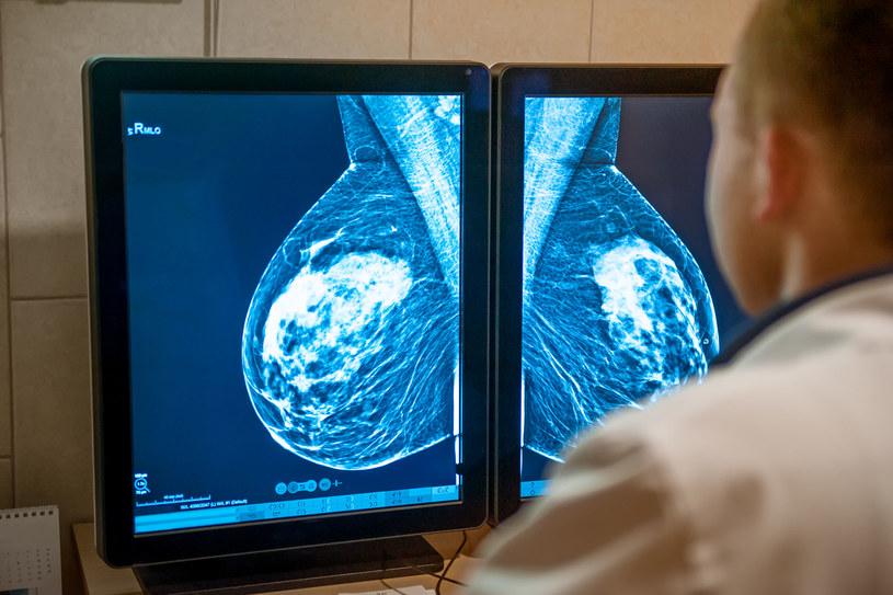 Warto regularnie badać piersi, aby wcześnie wykryć zmiany nowotworowe /123RF/PICSEL