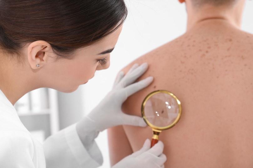 Warto regularnie sprawdzać stan swojej skóry /123RF/PICSEL