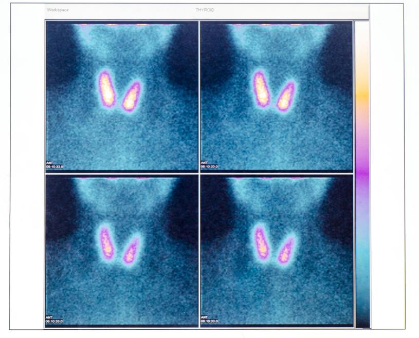 Warto wykonać scyntygrafię - badanie wykrywające guzki /123RF/PICSEL