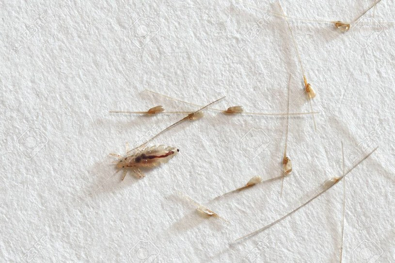 Wesz odzieżowa to pasożyt, który bytuje na ubraniach. Dlatego należy je prać po zakupie /123RF/PICSEL