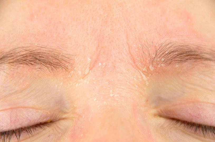 Widoczne podrażnienia skóry należy potraktować jako sygnał alarmowy /123RF/PICSEL