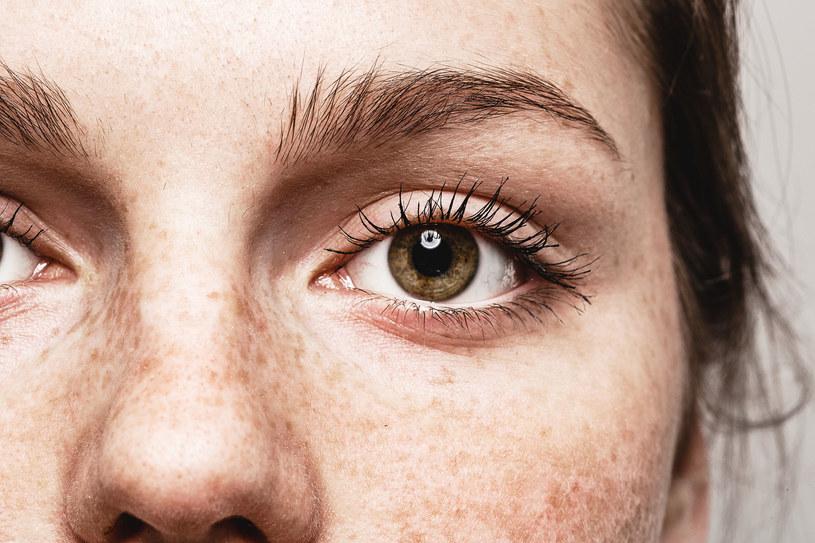 Wiele chorób daje objawy skórne już na wczesnym etapie. Nie lekceważ ich /123RF/PICSEL