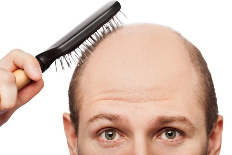 Wielu mężczyzn nie potrafi się pogodzić ze stratą włosów /123RF/PICSEL