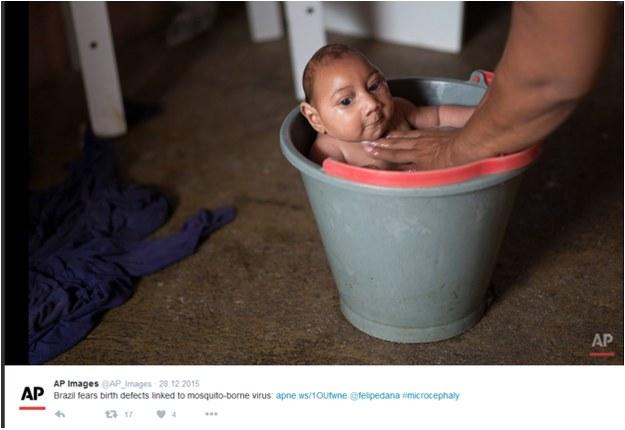 Wirus Zika powoduje małogłowie u niemowląt /Twitter /