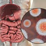 Wirusowe zapalenie wątroby typu C: Przyczyny, objawy i leczenie
