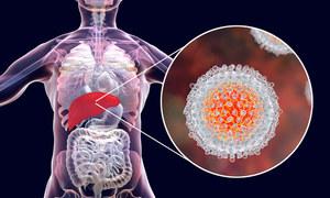 """Wirusowe zapalenie wątroby typu C. Zakażenie HCV to """"cichy zabójca"""""""