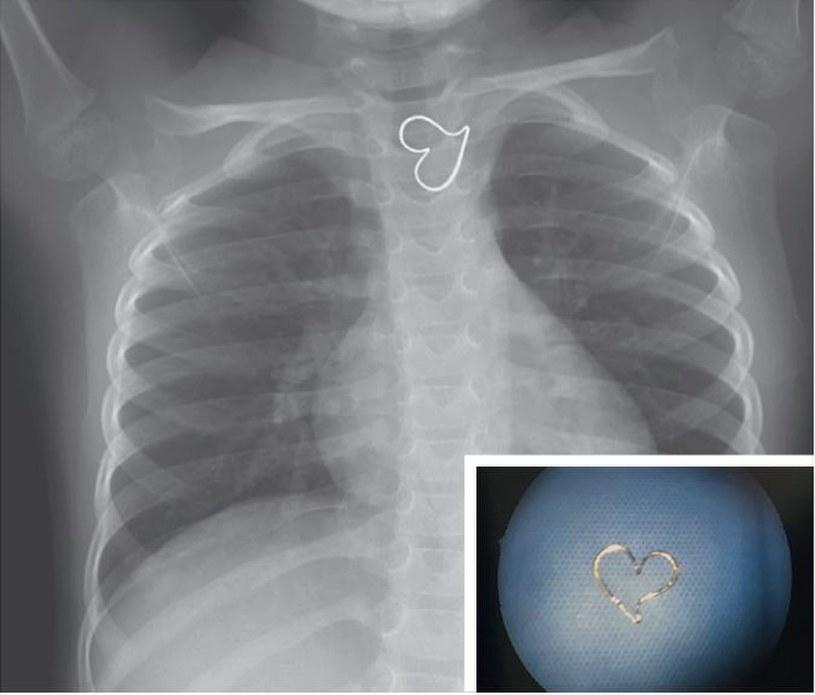 Wisiorek połknięty przez 3-latkę /Fot. The New England Journal of Medicine /materiały prasowe