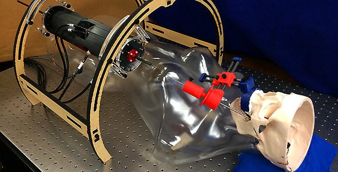 Wkrótce sposobem na leczenie padaczki może być operacja neurochirurgiczna przeprowadzana przez robota /materiały prasowe