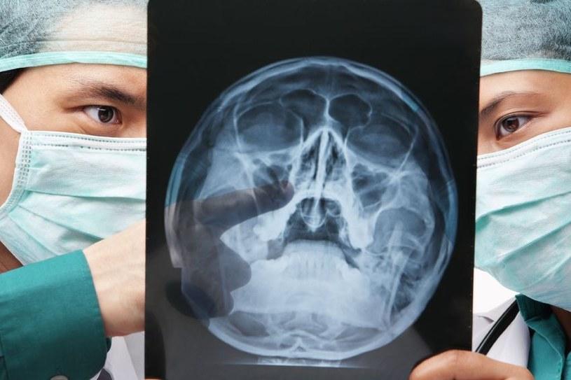 Wkrótce stosowanie promieniowania X będzie bezpieczniejsze? /123RF/PICSEL