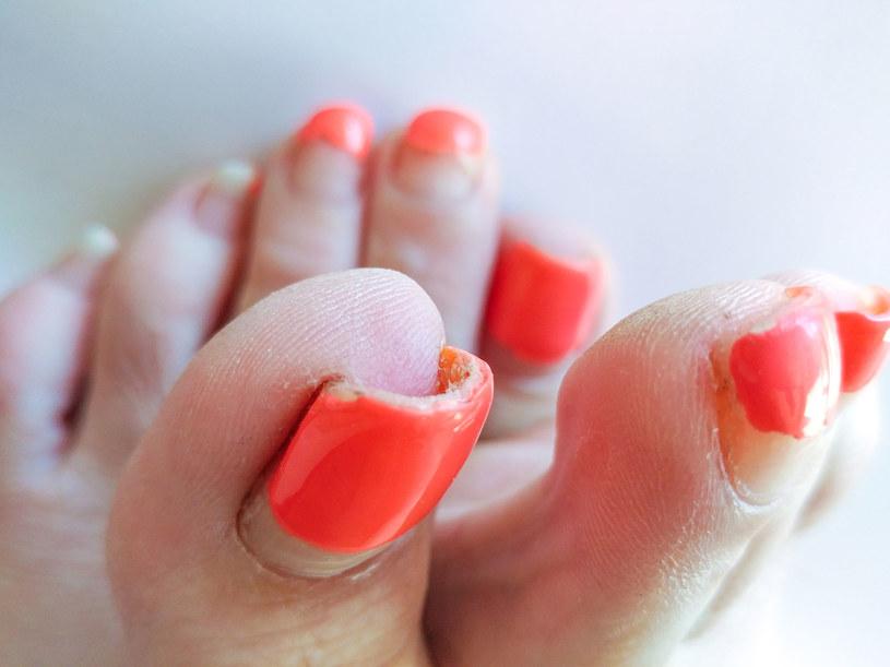 Właściwa pielęgnacja stóp i paznokci minimalizuje ryzyko schorzeń /123RF/PICSEL