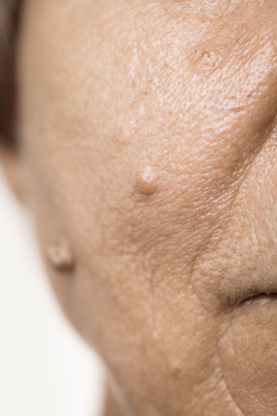 Włókniak na twarzy /©123RF/PICSEL