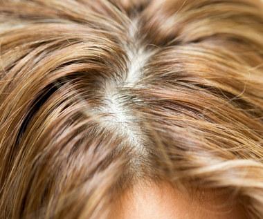 Włos ci z głowy nie spadnie