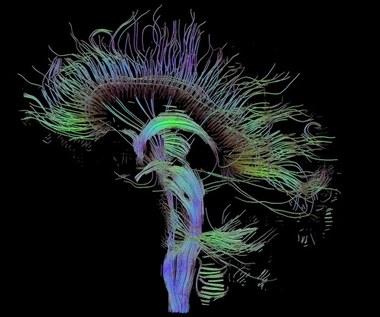 Woda w mózgu - niezwykły sposób obrazowania