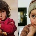 Wojna ma twarz dziecka