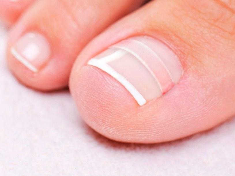 Wrastające paznokcie /© Photogenica