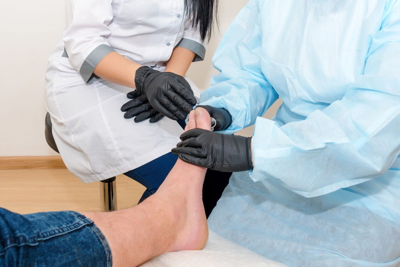 Wrastający paznokieć zazwyczaj wymaga konsultacji z lekarzem /123RF/PICSEL