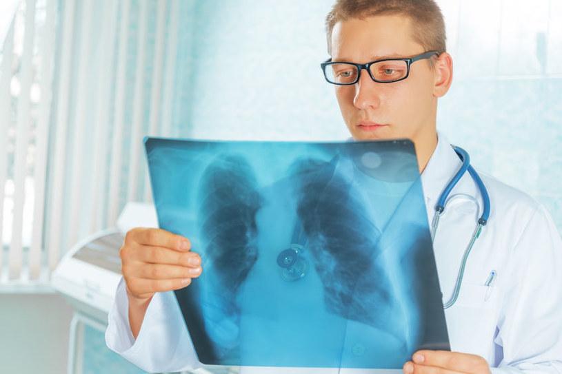 Wreszcie leczenie gruźlicy będzie skuteczniejsze? /123RF/PICSEL