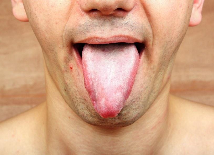 Wśród schorzeń, które atakują język, najczęstszym jest stan zapalny /123RF/PICSEL