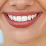 Wszystko, co trzeba wiedzieć o wybielaniu zębów