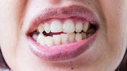 Wybielanie zębów w warunkach domowych